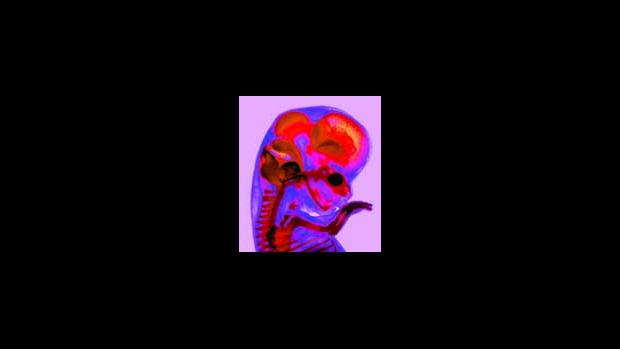 Krevní oběh plodu - obrázek