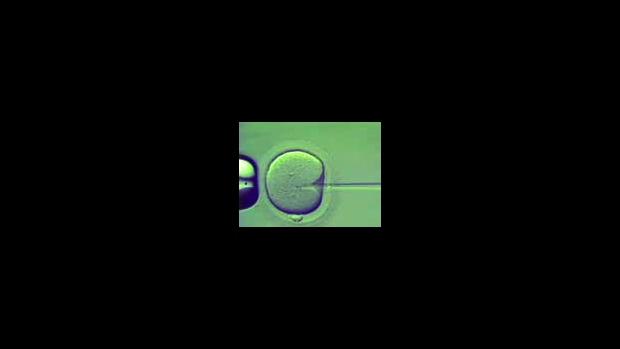 Intrauterinní inseminace (IUI) - obrázek