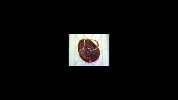 Plodový koláč - placenta - obrázek