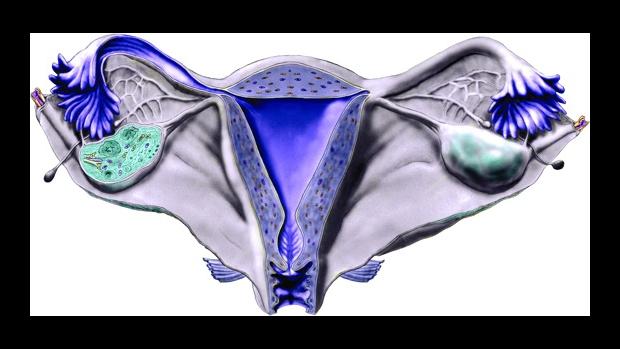 Anovulační sterilita - obrázek
