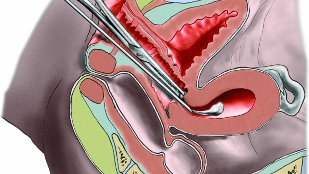 Potrat - abortus - obrázek