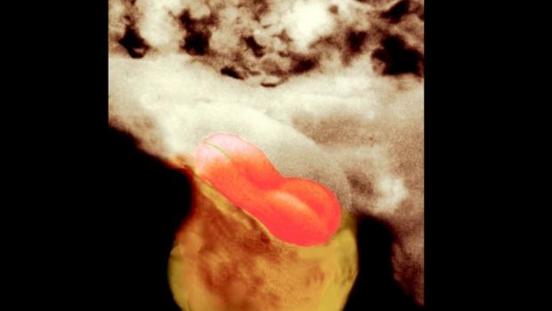 5. týden těhotenství - obrázek
