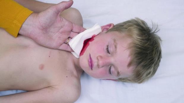 Žilní krvácení - obrázek