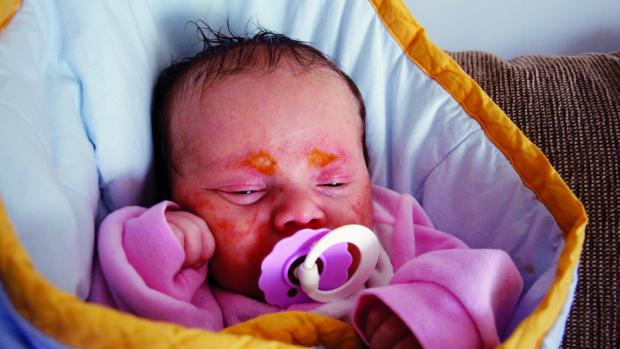 Novorozenecká kopřivka a potničky - obrázek