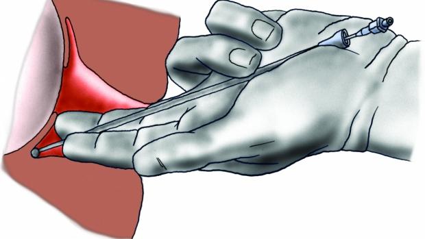 Paracervikální analgezie - obrázek
