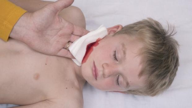 Zástava krvácení - obrázek