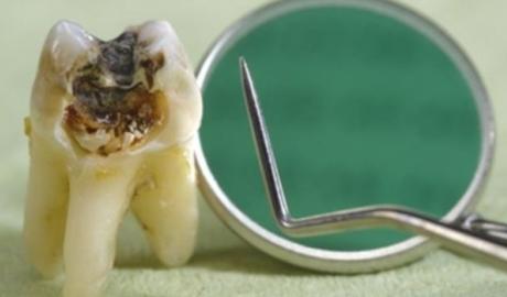 Vliv stravy na vznik a rozvoj  zubního kazu - 1.díl - obrázek