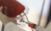 Pupečníková krev je nadějí pro autistické děti - obrázek