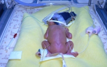 Hrozící předčasný porod - obrázek