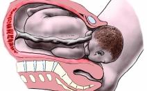 Pohyblivost a přizpůsobivost části plodu - obrázek