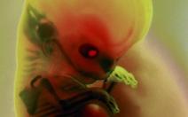 Období embryogeneze - obrázek