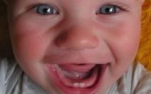 Běžné kojenecké neduhy - bolestivé prořezávání zoubků - obrázek