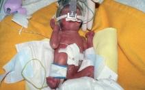 RSV infekce u předčasně narozených dětí - obrázek
