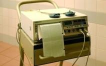 Kardiotokografie - obrázek