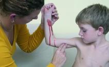 Tepenné krvácení - obrázek