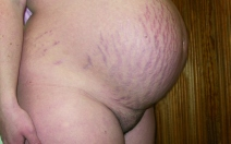 Choroby kožní v těhotenství - obrázek