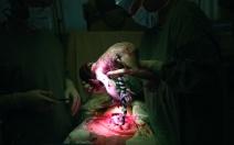 Jak se provádí císařský řez? - obrázek